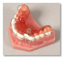 Expansion Screws -Minor Tooth Movement & Space Management